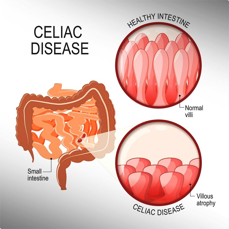 What is Celiac Disease? Do I Have Celiac Disease Or Gluten Sensitivity?