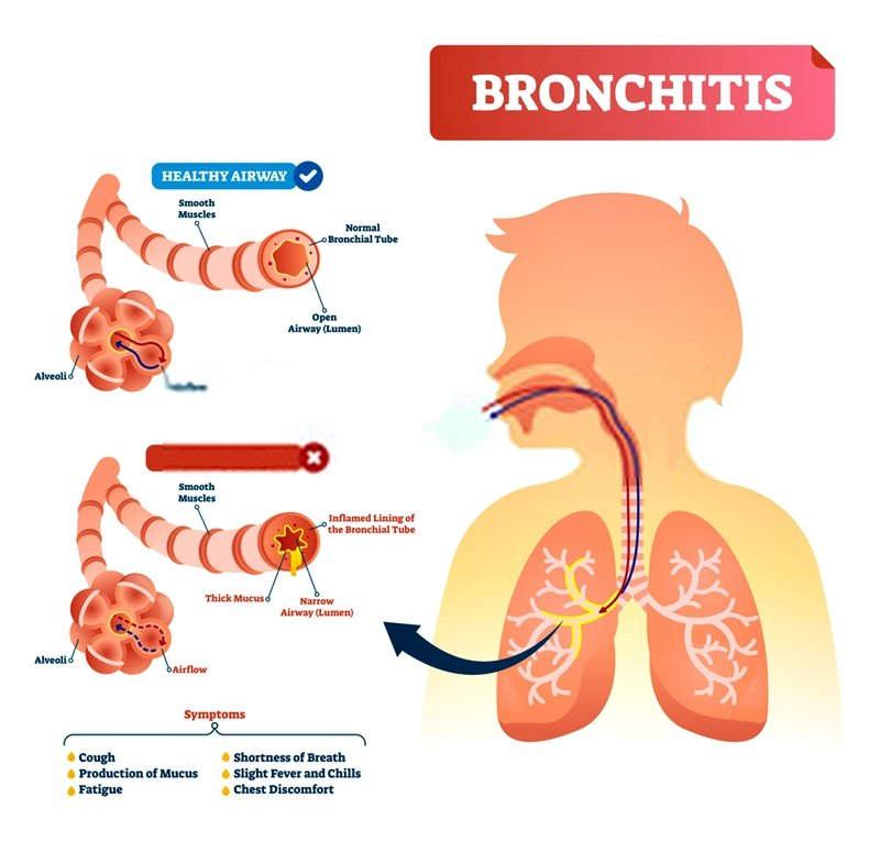 Remedies for Bronchitis. It is essential to stay away from items that may enter your lungs and make the condition worse, instead of allowing healing