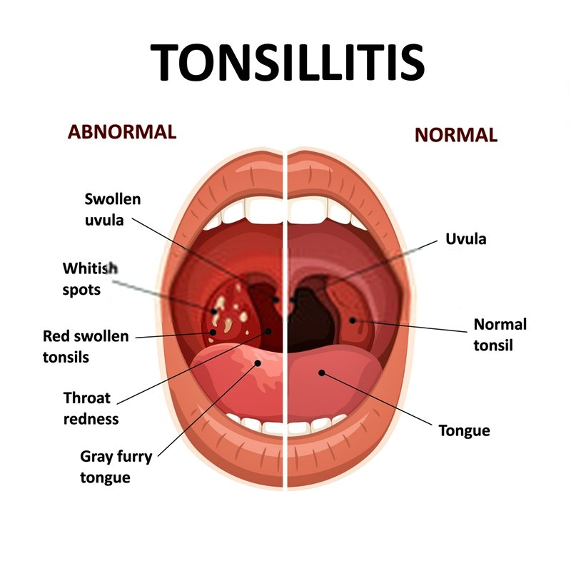 Remedies for Strep throat. A bacterial infection always causes this illness, and unlike the typical sore throat, you will likely see white spots on the tonsil area